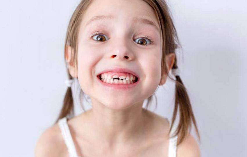 I denti permanenti dei bambini: a che età iniziano a spuntare