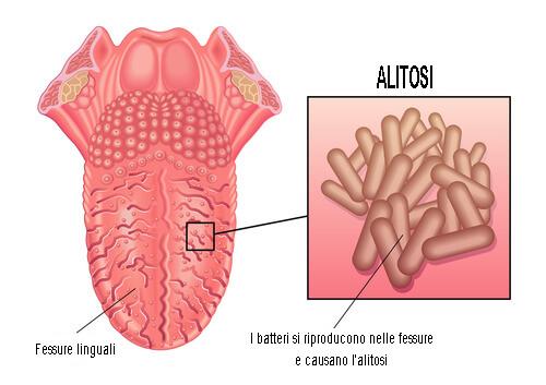 studio dentistico claudio bruni pontassieve alitosi