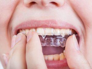 Bruxismo: Cause e Rimedi del digrignare i denti