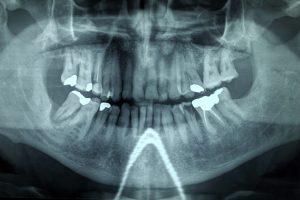 otturazione dentale